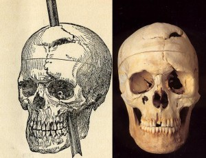 Gage Skull (courtesy of Harvard Univ)